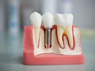 Имплантация, или вживление зубов