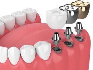 Импланты зубов, как выбрать лучшие